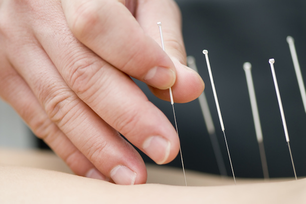 Dry Needling as a treatment